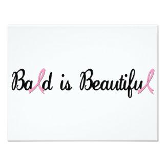 BALD IS BEAUTIFUL CARD