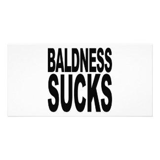Baldness Sucks Card