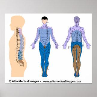 Base de lesión de la médula espinal, dibujo médico posters