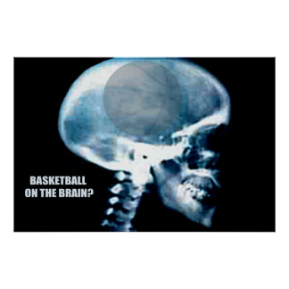 Basketball Head (X-ray) Posters