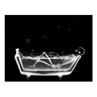 Bath Tub X-Ray Skeleton Black & White Postcard