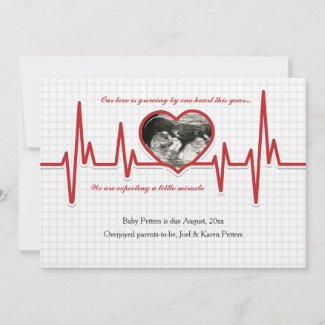 Beating Heart Photo Pregnancy Announcement