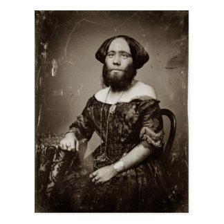 Beautiful Bearded Lady Postcard