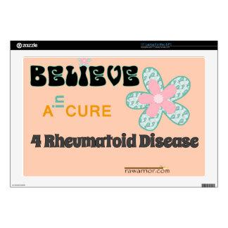 "Believe in a cure skin for 17"" laptop"