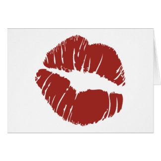 Big Kiss Thank You Card