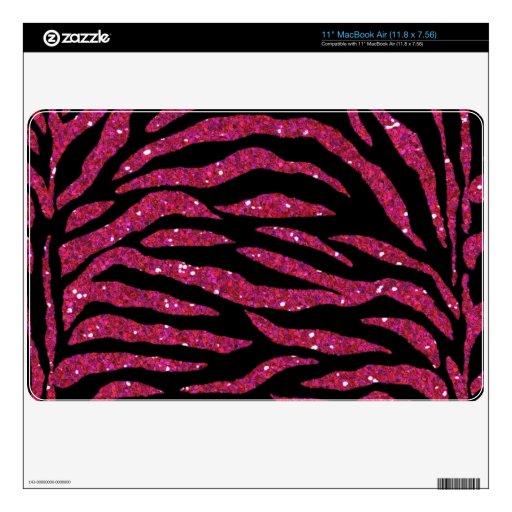 "Black & Pink Glitter Zebra Print Mac Air Skin Decal For 11"" MacBook Air"