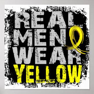 Bladder Cancer Real Men Wear Yellow Poster