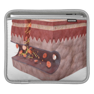Blood Clot Formation Sleeve For iPads