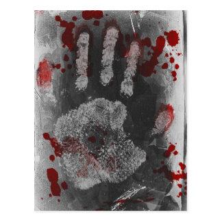 Blood Splatter Handprint Post Cards