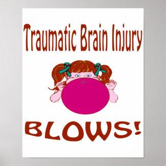 Blows Traumatic Brain Injury Poster