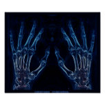 Blue Hands X-ray poster