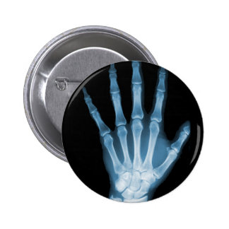 Blue X-ray Skeleton Hand Pinback Button