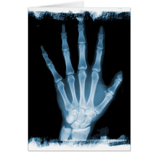 Blue X-ray Skeleton Hand Cards