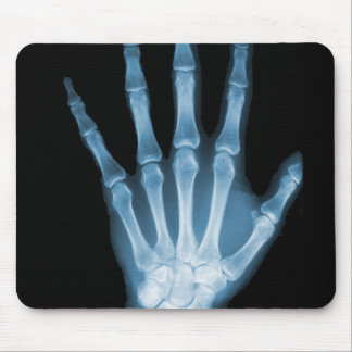 Blue X-ray Skeleton Hand Mouse Pad
