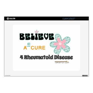 """Bold belief in a cure 15"""" laptop skin"""