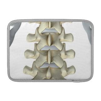 Bones of Lumbar Vertebrae Sleeve For MacBook Air