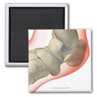Bones of the Foot 10 Magnet