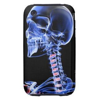 Bones of the Head and Neck 7 Tough iPhone 3 Case