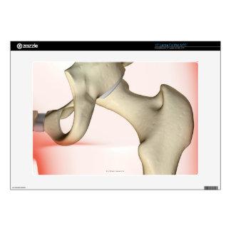 Bones of the Hip 2 Laptop Skins