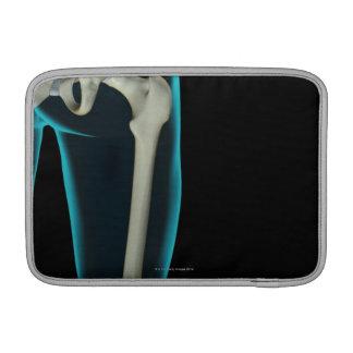 Bones of the Hip 3 Sleeve For MacBook Air