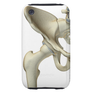 Bones of the Hip 5 iPhone 3 Tough Covers