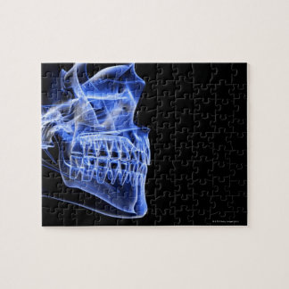Bones of the Jaw Jigsaw Puzzle