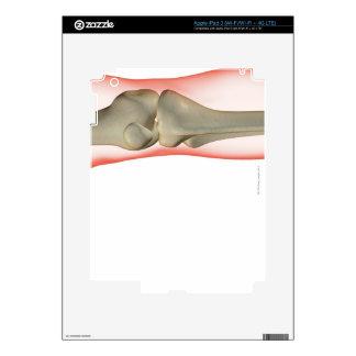 Bones of the Knee 2 Skin For iPad 3