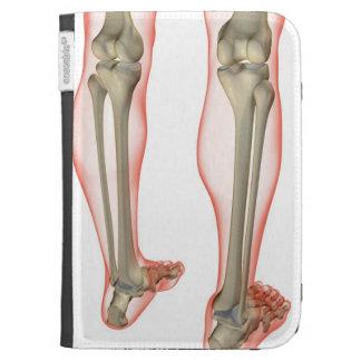 Bones of the Leg 3 Kindle Case