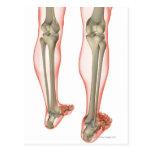 Bones of the Leg 3 Post Cards