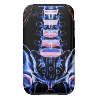 Bones of the Lower Back 5 Tough iPhone 3 Cover
