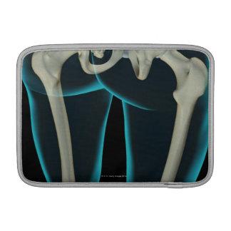 Bones of the Lower Limb 2 MacBook Air Sleeves
