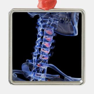 Bones of the Neck 3 Ornaments