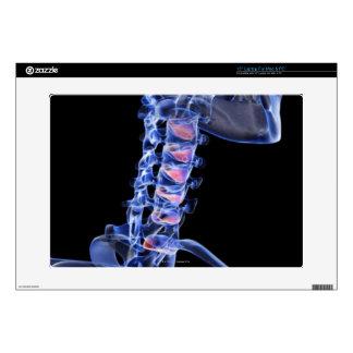 Bones of the Neck 3 Skin For Laptop