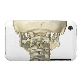 Bones of the Neck 4 iPhone 3 Case