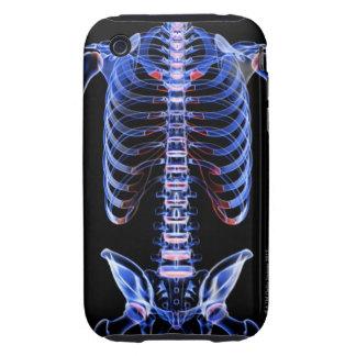 Bones of the Trunk 2 Tough iPhone 3 Case