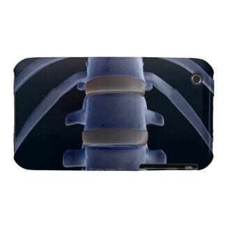 Bones of the Vertebral Column 2 iPhone 3 Case-Mate Case