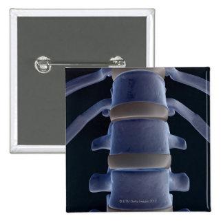Bones of the Vertebral Column 2 Pinback Button