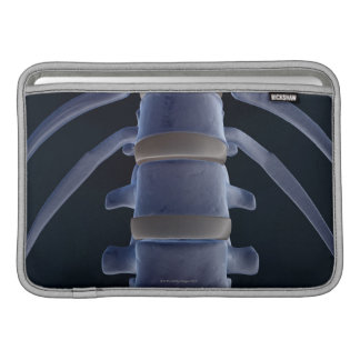 Bones of the Vertebral Column 2 Sleeve For MacBook Air