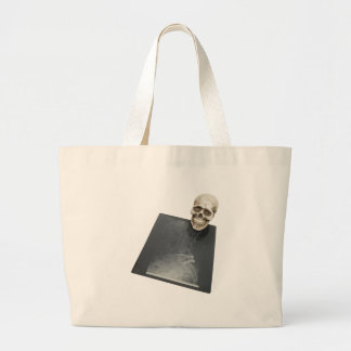 BonesXray061209 Tote Bags