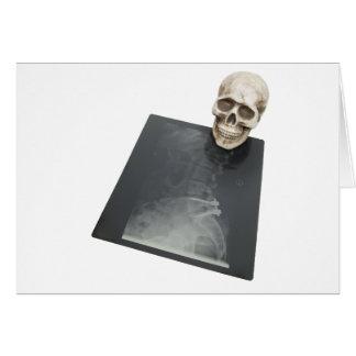 BonesXray061209 Greeting Card
