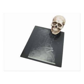 BonesXray061209 Postcard