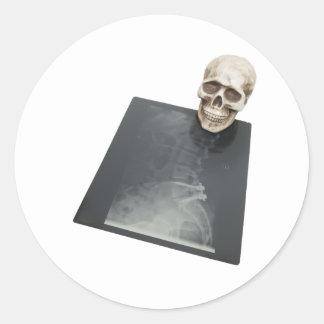 BonesXray061209 Round Stickers