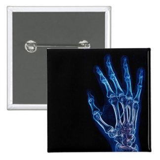 Botón azul de la radiografía de la mano