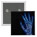 Botón azul de la radiografía de la mano pin