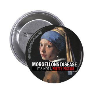 Botón de la conciencia - chica con el pendiente pin redondo de 2 pulgadas