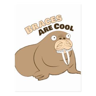 Braces Are Cool Postcard