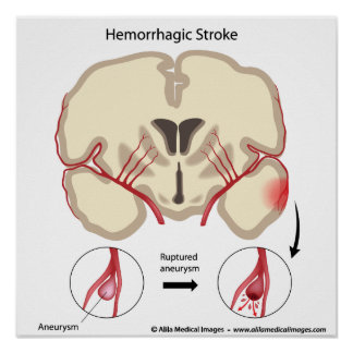 Brain aneurysm diagram. poster