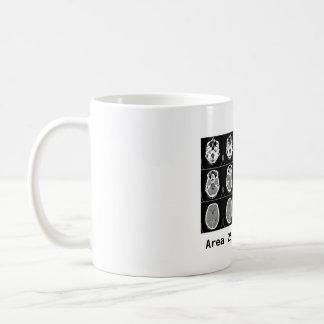 Brain: Area 25 made me do it. Classic White Coffee Mug
