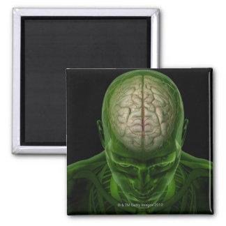 Brain Arteries Magnet