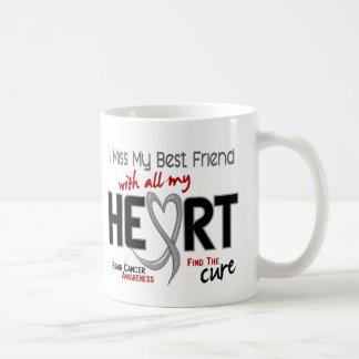 Brain Cancer I MISS MY BEST FRIEND Coffee Mugs